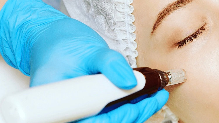 Online Accredited Microneedling Course