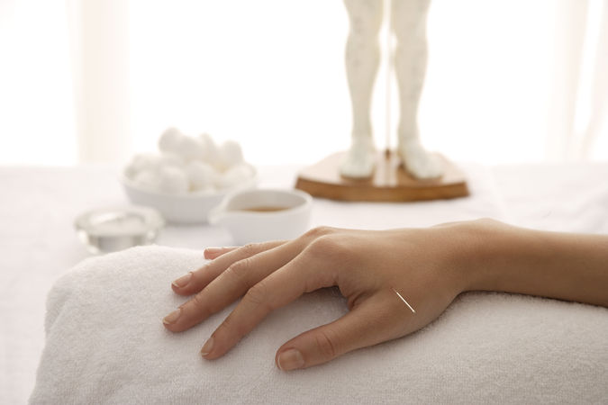Acupuncture needle in a woman's hand