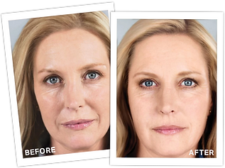 Sculptra+Before+After+2.png
