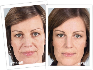 Sculptra Before After3.png