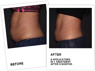CoolSculpting Before After 3.png