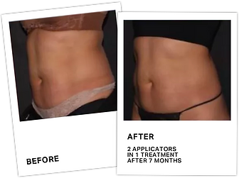 CoolSculpting Before After 2.png