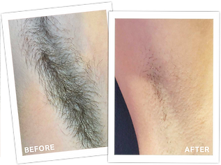 Before After Laser Hair Removal