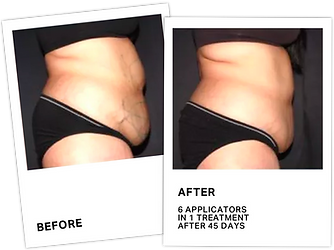 CoolSculpting Before After 1.png