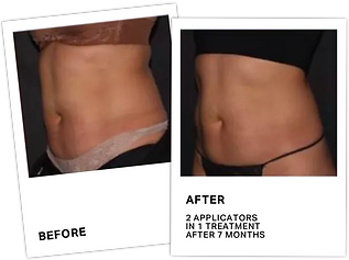 CoolSculpting+Before+After+2.png