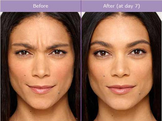 Why does my Botox not last as long?