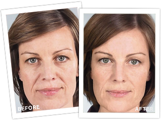 Sculptra+Before+After3.png
