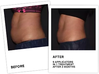 CoolSculpting+Before+After+3.png