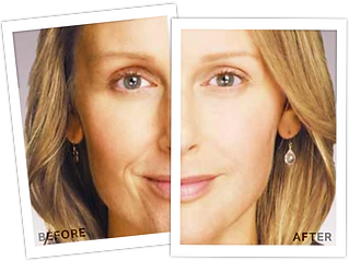 Juvederm+Before+After+1+.png