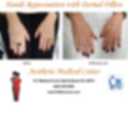 Hands Rejuvenation Dermal Fillers 2019.j