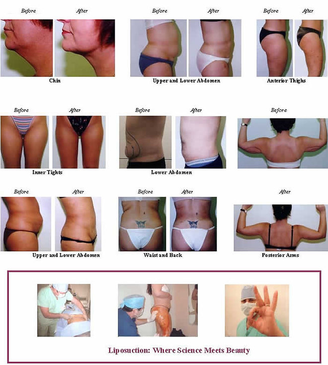Body contouring procedures done with Local Anesthesia Only.