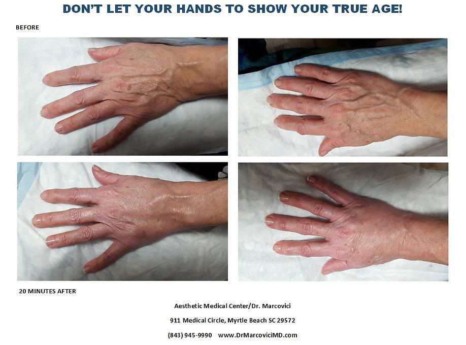 Hand Rejuvenation 20 minutes later.jpg
