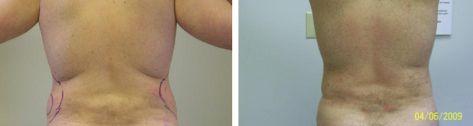 Man withLov Handles Liposuction