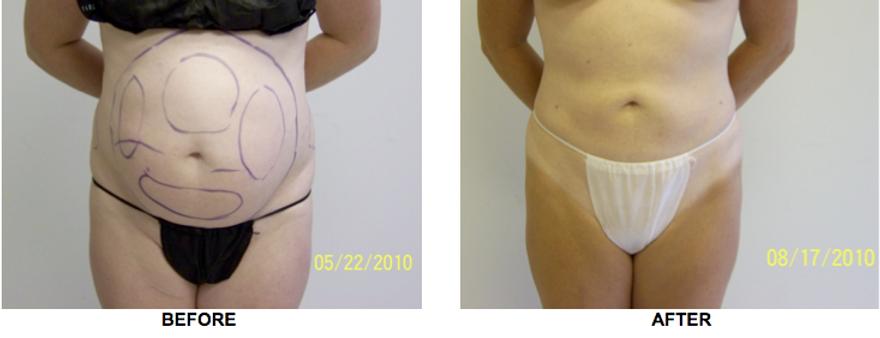Abdominal Liposuction, Love Handles Liosuction