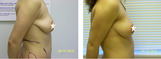 Breasts Enlargement with Fat Grafting