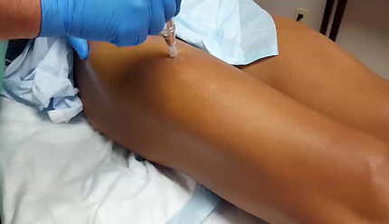 Microneedling Treatment for Stretch Marks