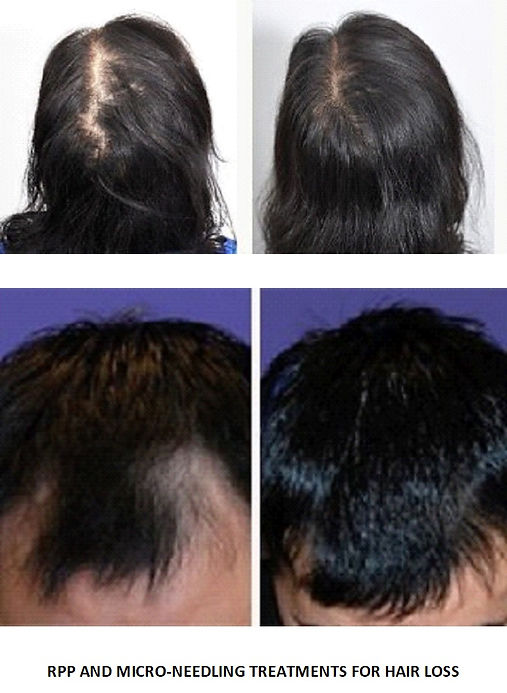 MicroNeedling and PRP for Hair Regrowth. Dr. Marcovici