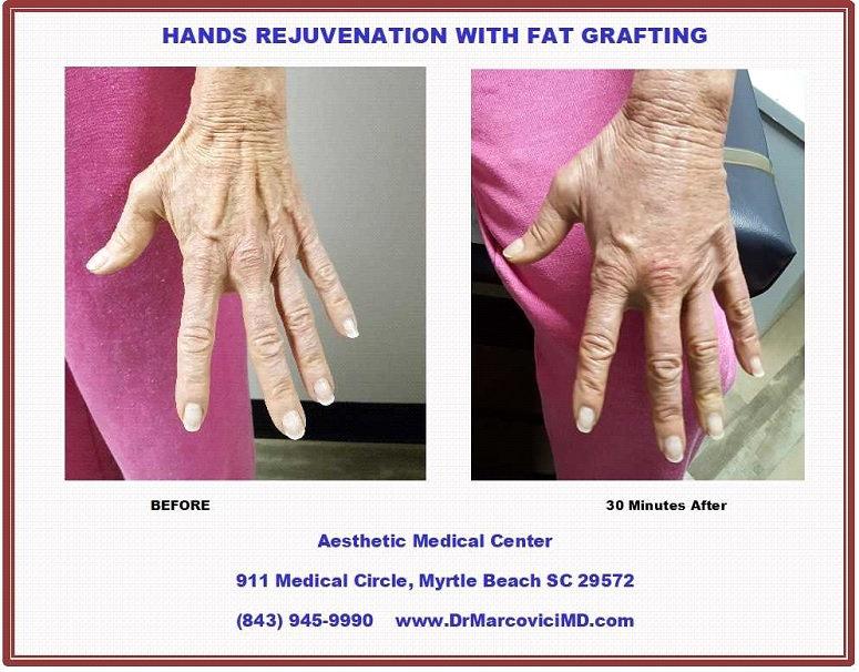 Hands Rejuvenation with Fat Grafting.jpg