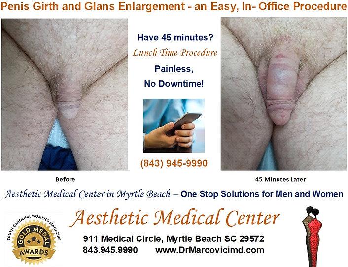 Penis Girth and Glans Enlargement .jpg
