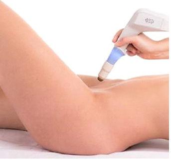 Vaginal Rejuvenation