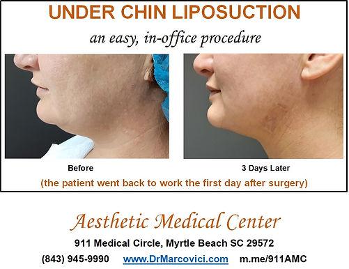 Under Chin Liposuction