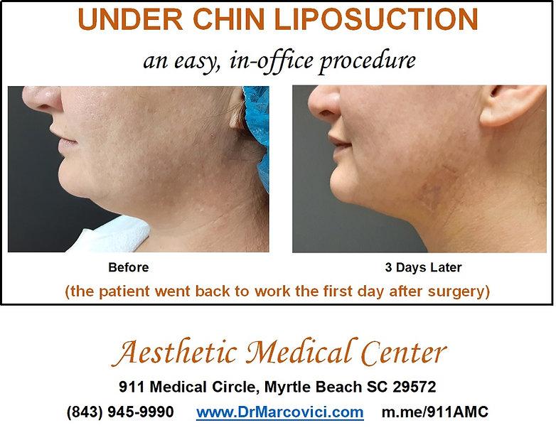 Under Chin Lipo 3 days after.jpg