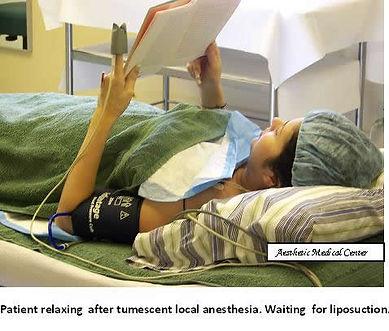 Tumescent Local Anesthesia befoe starting Liposuction