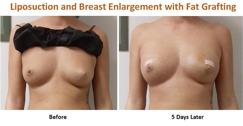 Breasts Fat Grafting wix.jpg