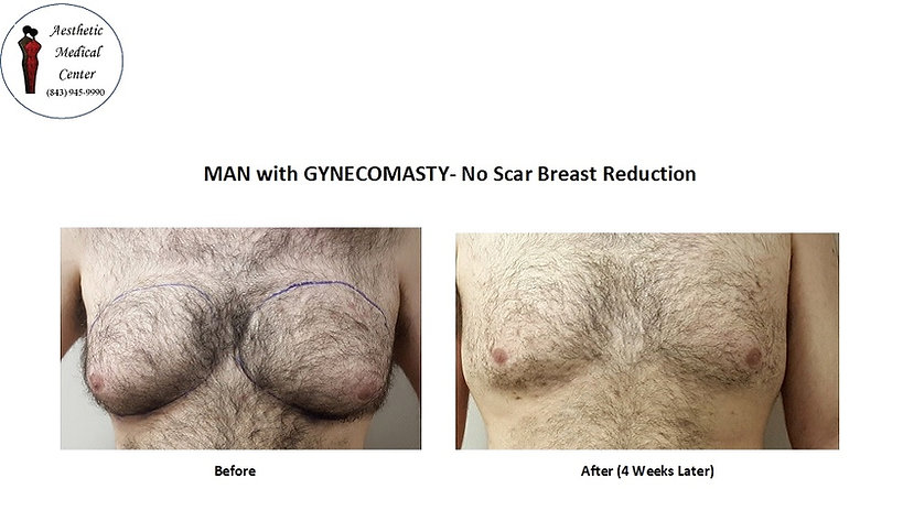 """Man """"with Bubs"""". Breast Reduction, No Scars, Gyecomasty"""