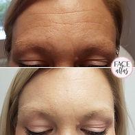 Botox av panna, Halmstad