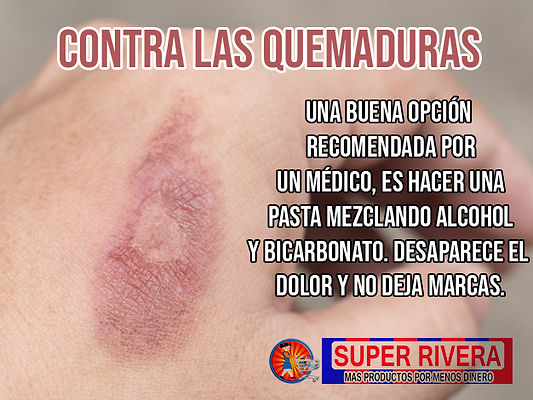 QUEMADURAS.jpg