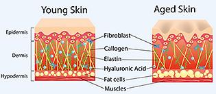 youn-aged-skin-x-350.png