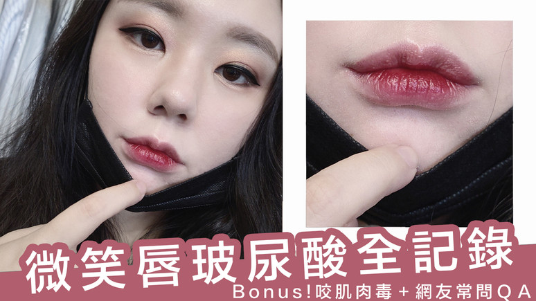 VIDEOᴴᴰ零死角美唇~微笑唇玻尿酸 咬肌肉毒全記錄 網友常見問題一次解答|AiNa 愛娜