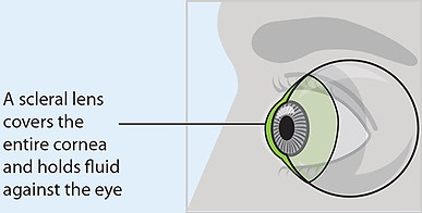 scleral-cartoon.png