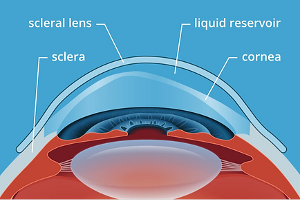 Scleral Lenses_edited.png