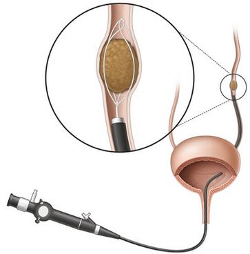 Endoscopia para retirada de cálculo no ureter