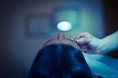 RENEE-LISE LAVOIE ACUPUNCTEURE - Acupuncture esthéthique