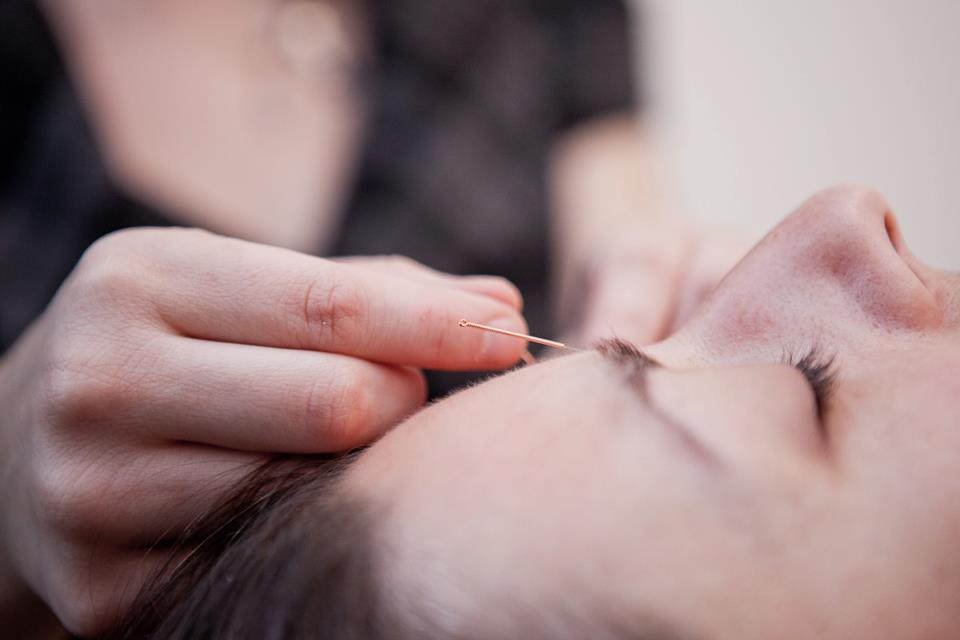 RENEE-LISE LAVOIE ACUPUNCTEURE - Acupuncture au laser