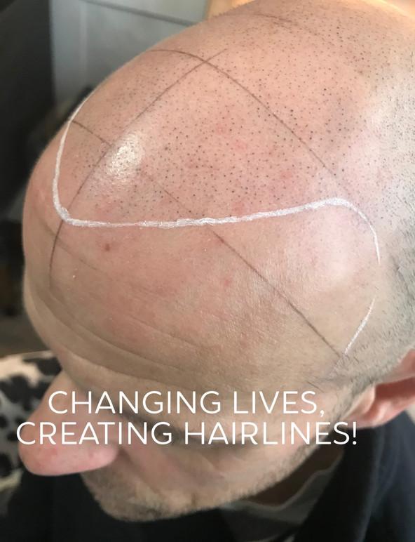 john hairline.jpg