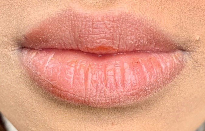 Dark Lip  Neutralisation Consultation