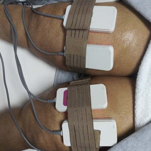 Laser Lipo on Thighs
