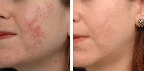 acne&scars treatment-fraxel-laser