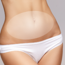 HIFU body lipolysis, tummy