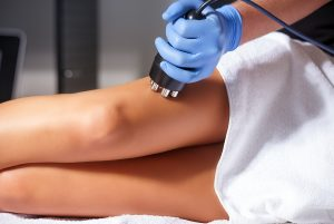 Cellulite_Treatment_Bournemouth-300x201.
