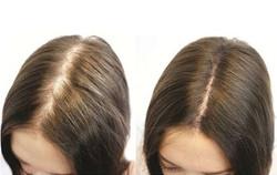 Alopecia-androgenică-la-femei