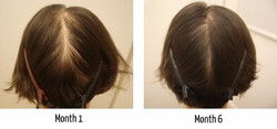 Female-Pattern-and-Diffuse-Hair-Loss-Photoscans-The-Belgravia-Centre_edited