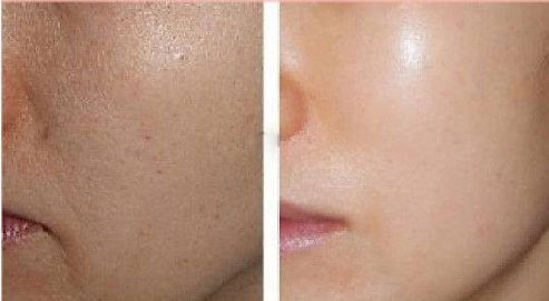 wide-pores-treatment and skin pigmentation