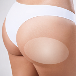 HIFU Bodylifting, buttock lift