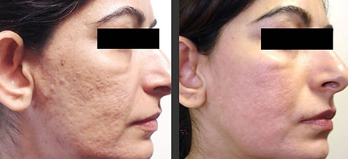 acne-scars treatment-fraxel-laser