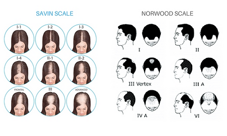 norwood scale.png